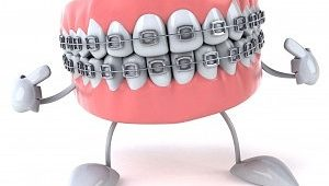 брекеты на зубы