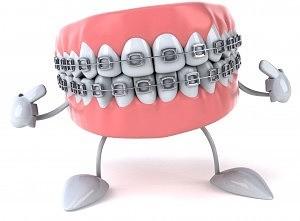 Фото брекетов на зубы