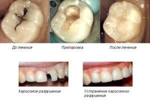 Как лечить кариес зубов