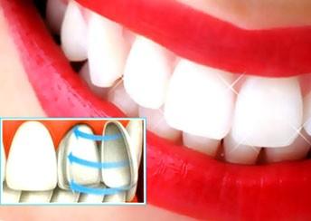Виниры на зубы, что это такое