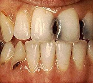 Чрезмерное потребление сладких напитков разрушают в первую очередь зубы во фронтальном участке челюсти.