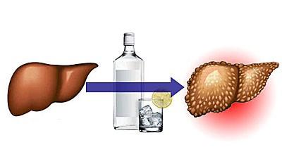 Поражениепечени алкоголем