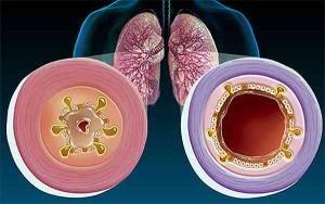 Хроническая обструктивная болезнь легких, что это такое