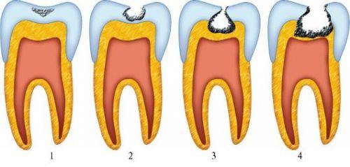 Кариес зубов по глубине поражения