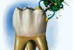 Классификация кариеса зубов