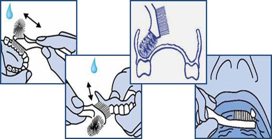 уход за пластинчатыми протезами
