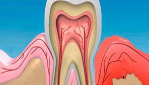 Кровоточат десна при чистки зубов, лечение
