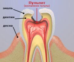 Болит зуб из-за пульпита