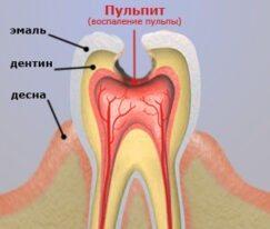Пульпит. Болит зуб