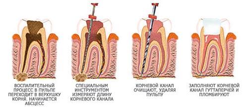 Эндодонтическое лечение зуба это