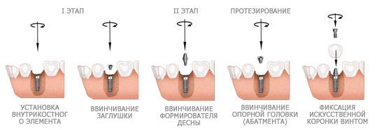 Этапы установки формирователя десны