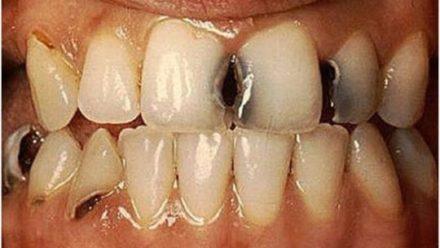 Глубокий кариес на передних зубах