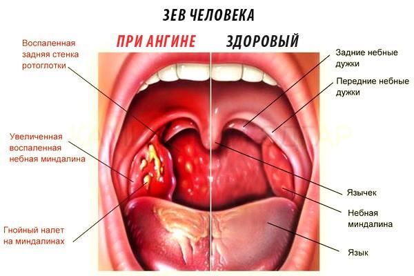 Комок в горле, причины кома в горле при глотании