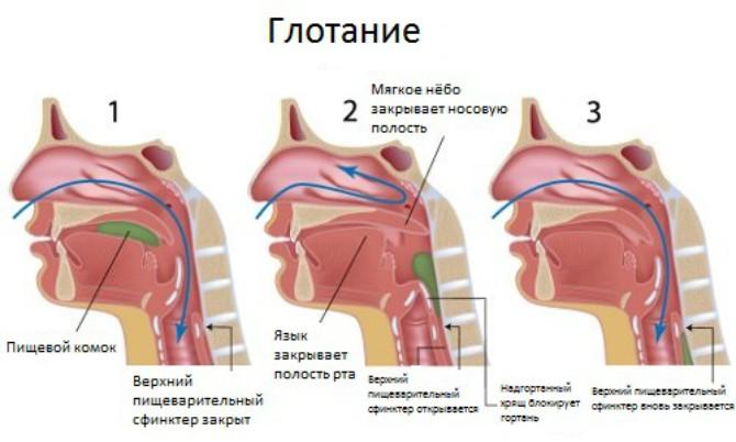 Комок в горле при глотании