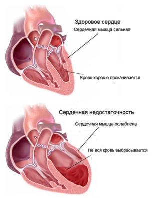 Осложнение ангины