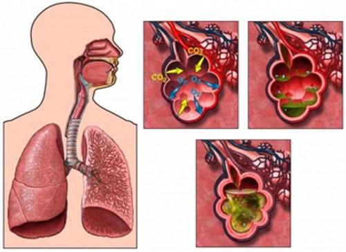 Воспаление легких, симптомы у детей