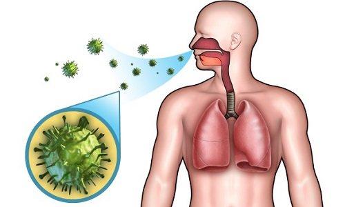 Вирусное воспаление легких