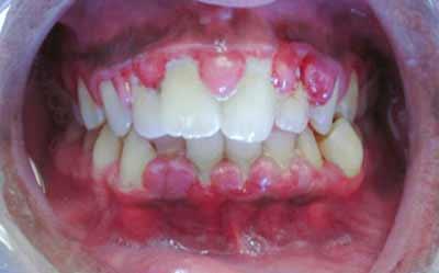 На десне над зубом шишка