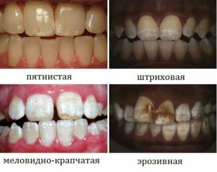 Клинические формы флюороза у детей