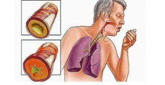 Как лечить бронхит у взрослых лекарствами