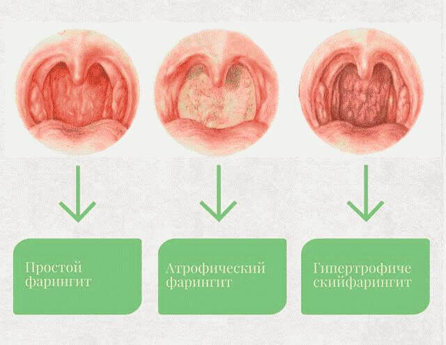 Заболевания верхних дыхательных путей