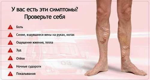 Венозное разширение на ногах