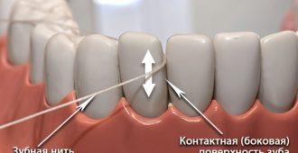 Зубная нить Чистка межзубных промежутков