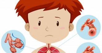 Dronhialnaj-astma