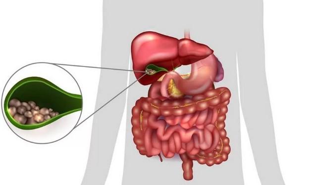 Холицистит - как работает печень и желчный пузырь